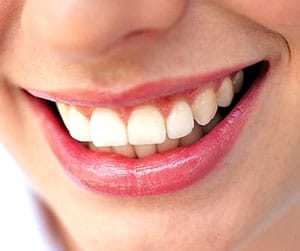 Des dents ultra blanches pour le jour de son mariage